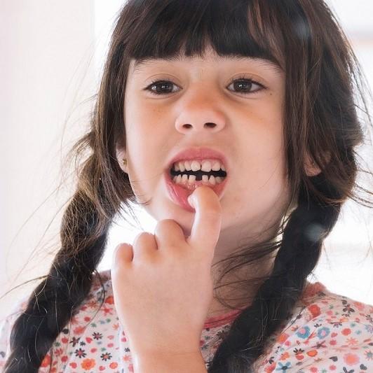 Jangan Abaikan 3 Masalah Gigi Susu Ini!
