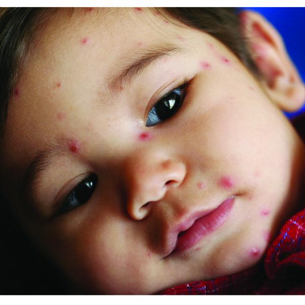Kenali Alergi Anak Sejak Dini